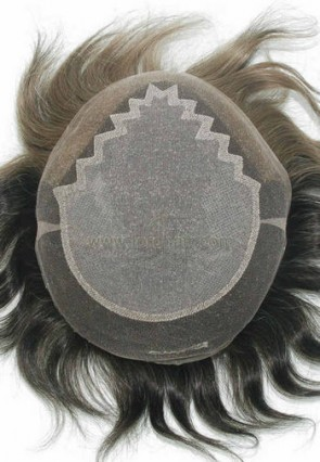 jq1307 hair replacement system