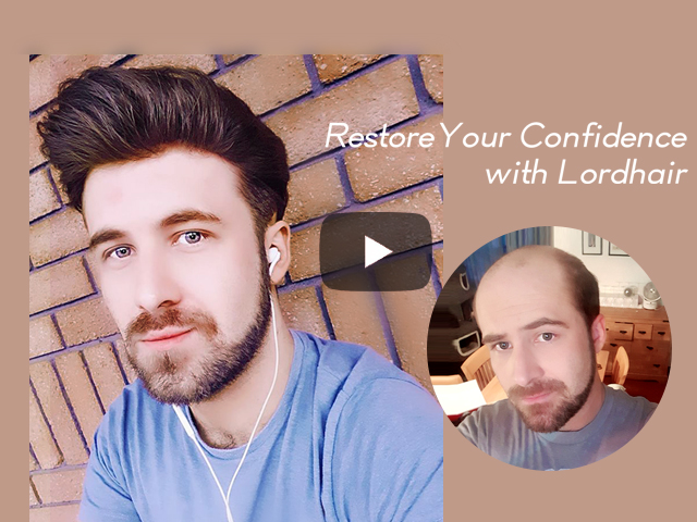 Changing Lives with Lordhair Non-surgical Hair Replacement Systems